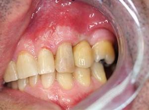 implantologia_5