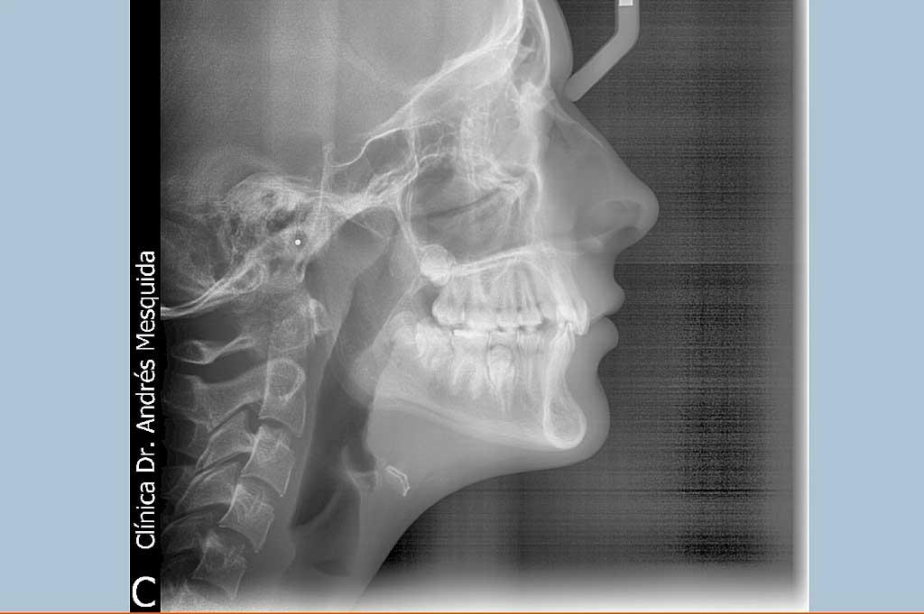 dents_r